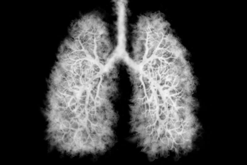 Imagem de um pulmão que possui a doença chamada Popcorn Lung