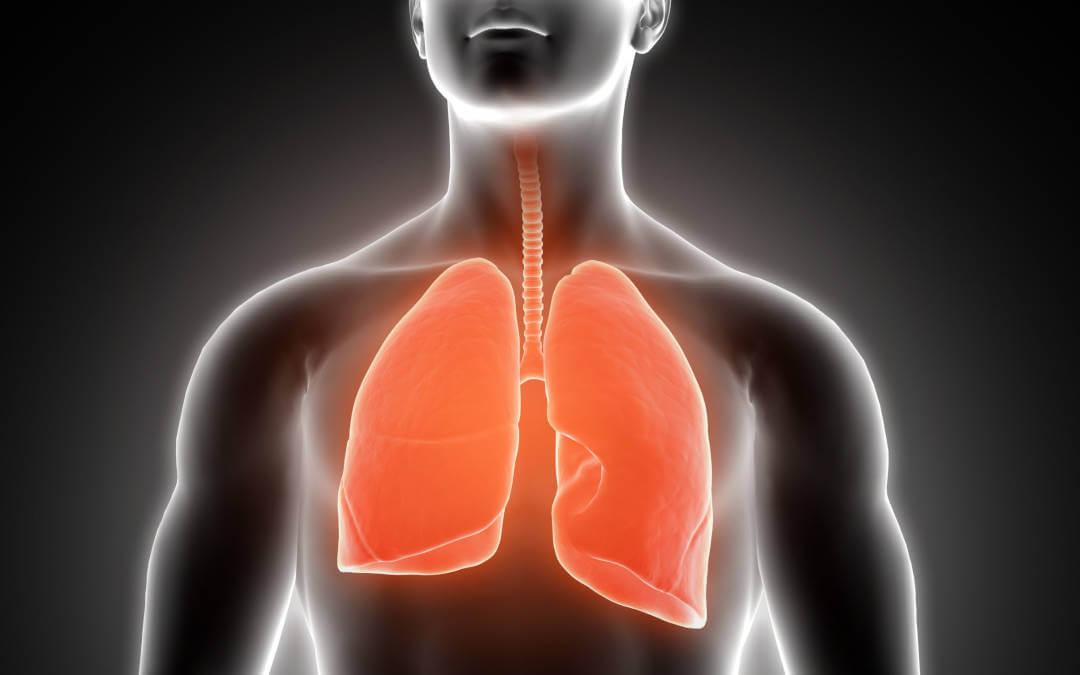 tipos de câncer de pulmão